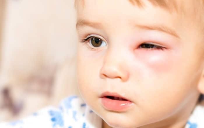 Conjuntivite em crianças: Remédio Caseiro