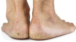 Hornhaut-Füße