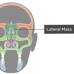 Ethmoid Bone Diagram What Is Wiring Anatomy Coronal View Of The Lateral Mass Highlighted And Labeled