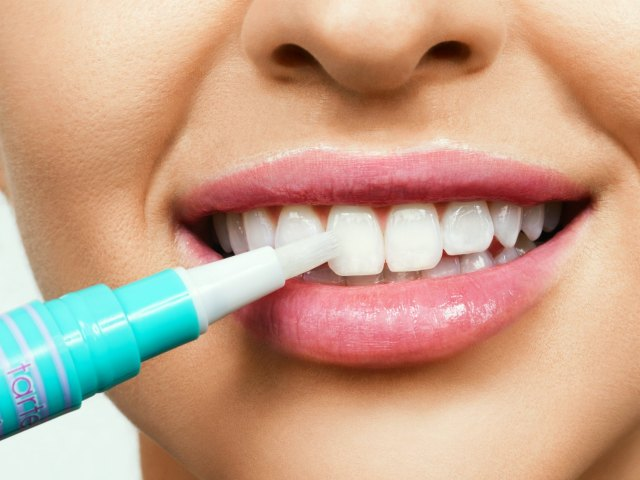 Teeth Whitening Pen: Last Minute Touch-up to your Smile