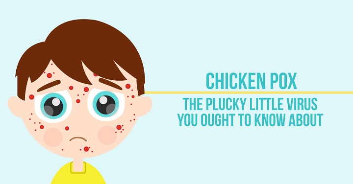 Diet for Chicken Pox | Food to Eat & to Avoid in Chicken Pox