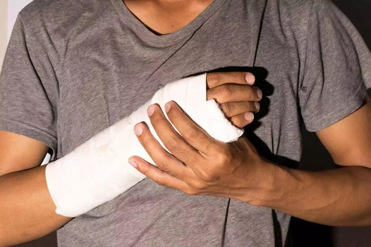 Broken Arm Car Accident Injury