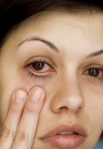 sleep deprived ADD / ADHD woman uses fingers to show red eyes