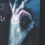 Groenlipmossel artrose