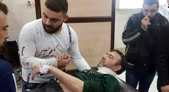 Three civilians wounded in a fresh terrorist shelling attack in Aleppo