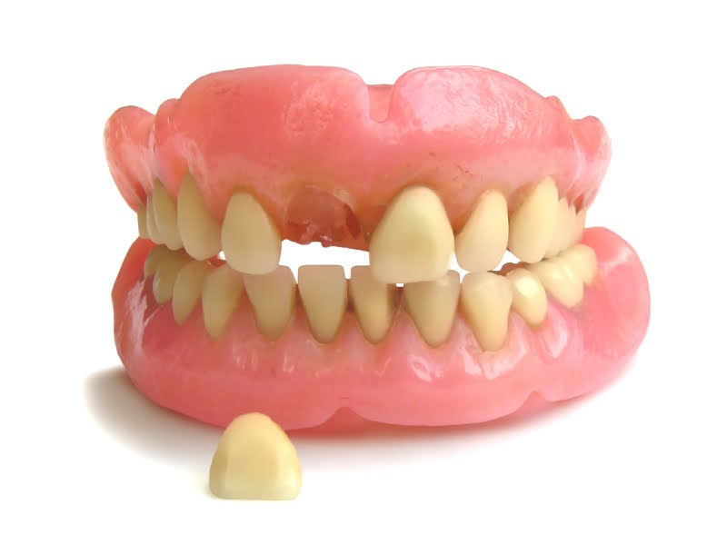 Denture REPAIR in {45 Min} Dental Lab MIAMI Laboratorio ...