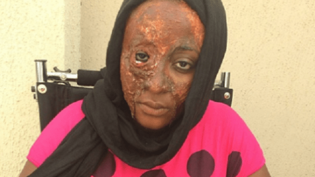 Ini-Edo-As-Acid-Victim