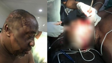 Dana Pilot Attacked N Brutalise By Hoodlums While Jogging