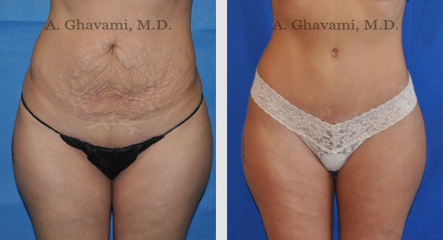 Tummy Tuck Before and After Photos in Beverly Hills - Dr ...