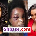 Afia Schwarzenegger Replies Benedicta Gaffah On The Brutalized Picture Saga