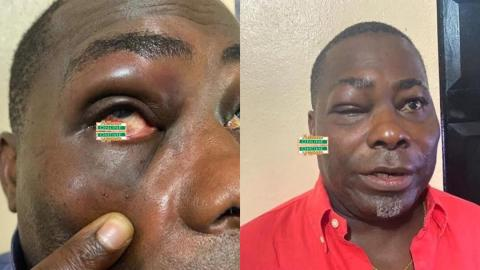 NPP MP and his regional executive fight bloody, both sustain varying degrees of injury