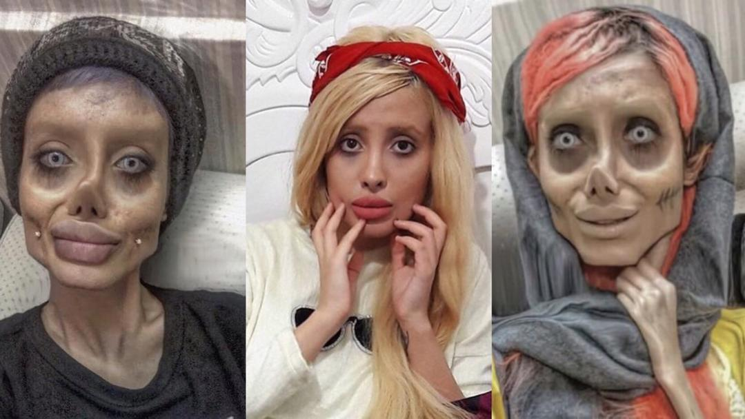 Iranian 'Zombie Angelina Jolie' Received 10 Years in Prison, Journalist Claims
