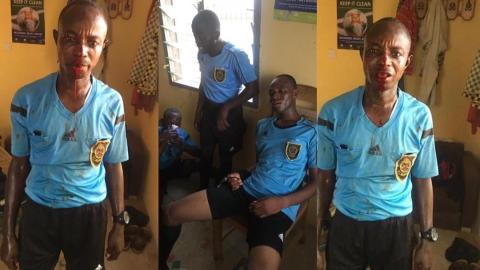 Referee loses all his teeth after match officials officiating Ghanaian Division 1 league were beaten to pulp by angry fans [Video]