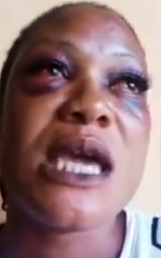"""""""They stripped me naked and I watch them kill other victims without mercy"""" – Kidnap victim shares horrific experience (Video). 51"""