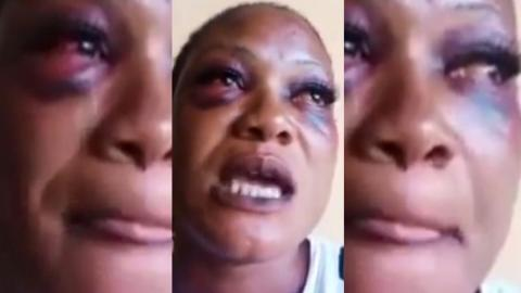 """""""They stripped me n@ked and I watch them k!ll other victims without mercy"""" – Kidnap victim shares horrific experience [Video]"""