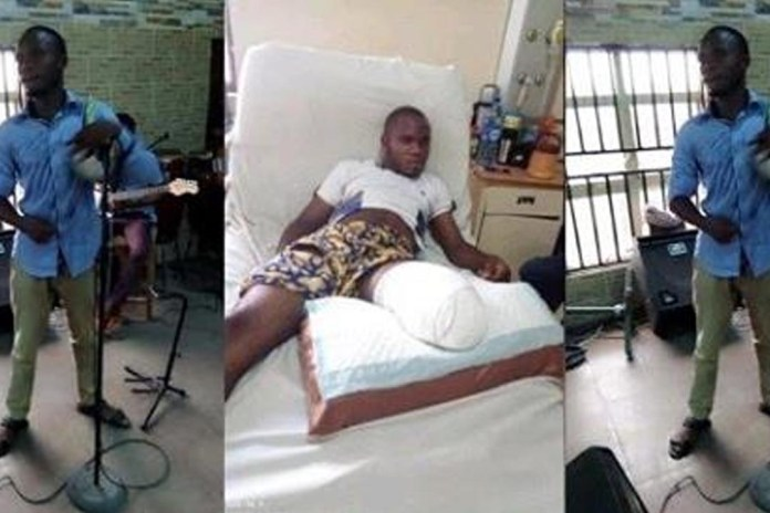 Man loses leg in an attempt to bribe a policeman