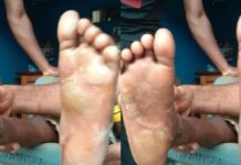Man arrested for burning the feet of his son for allegedly eating his stew