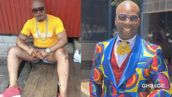 The bleaching spirit in Bukom Banku needs to be cast away - Kumchacha