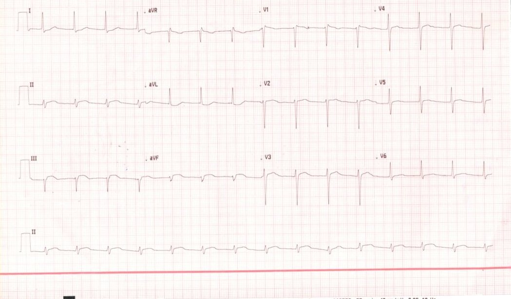 Acute thrombotic occlusion of Non-dominant right coronary