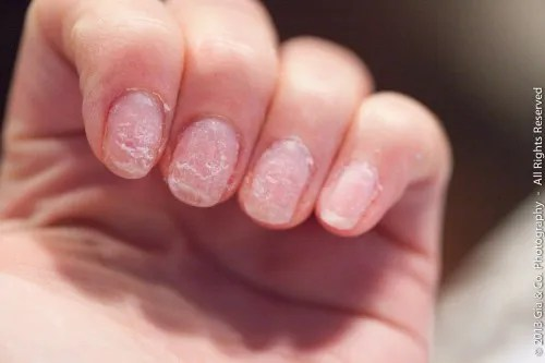 Take Them Off The Right Way Removing Artificial Nails