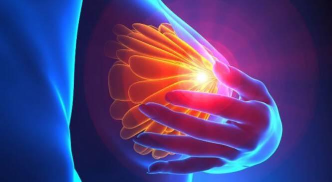 Φλεγμονώδης καρκίνος του μαστού: Συμπτώματα του πιο ύπουλου καρκίνου στο στήθος!!!-ΒΙΝΤΕΟ