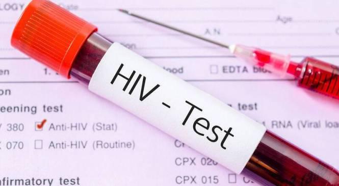 Ένα σούπερ-αντίσωμα και ένα φθηνό χάπι τα νέα «όπλα» κατά του ιού HIV!!!
