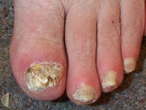 Nail fungus can occur from walking barefoot.