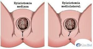 episiotomia  Episiotomía episiotomia 1