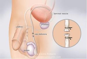 Vasectomia  Vasectomia 37  cirugia intima rosario web