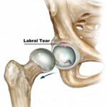 right-hip-labral-tear