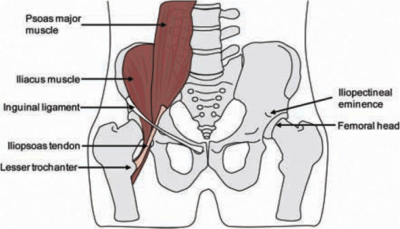 Photo sourced from: Lewis CL. Extra-articular Snapping Hip: A Literature Review. Sports Health. 2010 May; 2(3): 186–190.