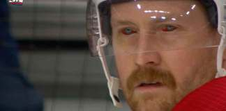 Jeff Petry with bloodshot eyes