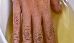 Read more about the article Βάζει το χέρι της σε μηλόξιδο δύο φορές την εβδομάδα. Μόλις μάθετε τον λόγο θα το κάνετε κι εσείς!