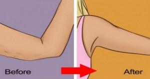 10 φυσικοί τρόποι για να σφίξετε το δέρμα σας, και να χάσετε το περιττό δέρμα από τα χέρια σας!!!