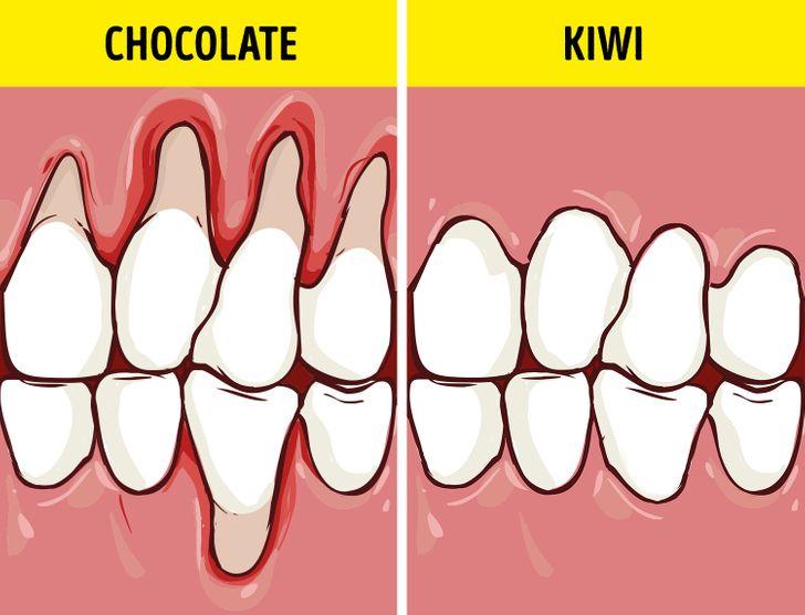 Τρόφιμα που ενισχύουν τα δόντια και τα ούλα