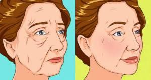 Χαλάρωση στα μάγουλα
