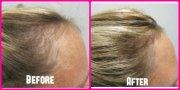 vitamins hair loss list of