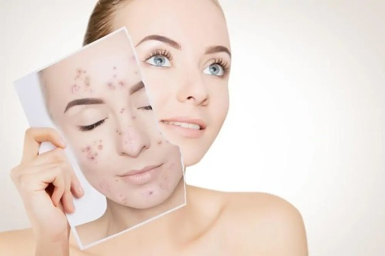 How to Reduce Acne Swelling: The Road to Clear Skin