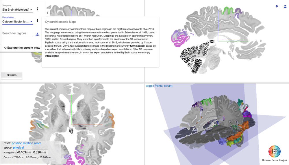 Microscopic resolution 3D model of a complete human brain.  From the Human Brain Project's Interactive Atlas Viewer.