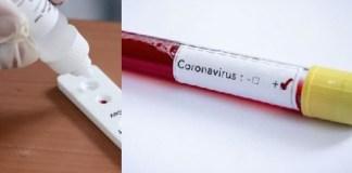 NCDC Reports 212 New Cases of Coronavirus across Nigeria