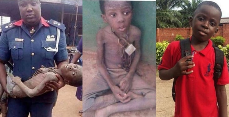 Checkout new photos of Korede after he was rescued from his family