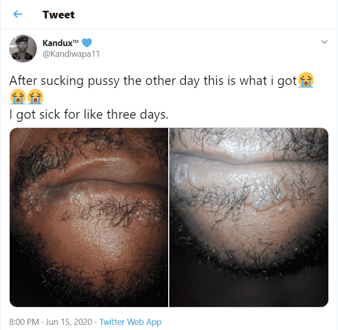 Man reveals what happened to his lips and tongue after oral-sex with a girl (Photos)