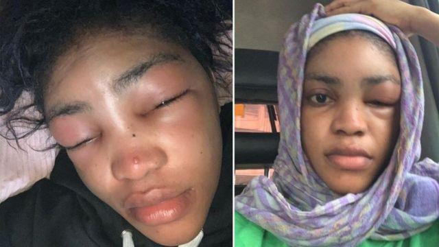 lil frosh girlfriend swollen face beaten