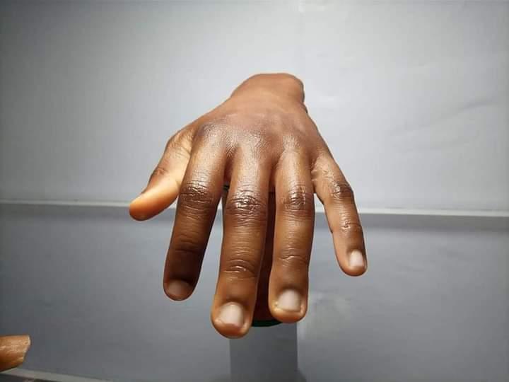 Man Twitter Artificial Dark-Skinned Human Parts