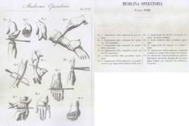 Rappresentazioni di interventi chirurgici ricavate da un atlante di Medicina Operatoria del medico garibaldino Dott. Giuseppe Basile