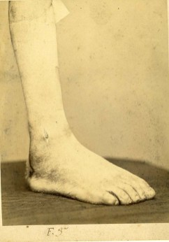 Garibaldi, reperti dalla Cartella Clinica della ferita