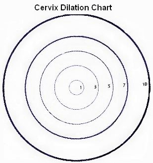 Is Cervix Dilation an Early Sign of Labor?
