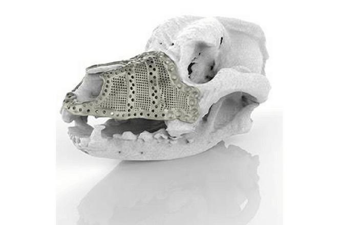 implante en 3D de titanio
