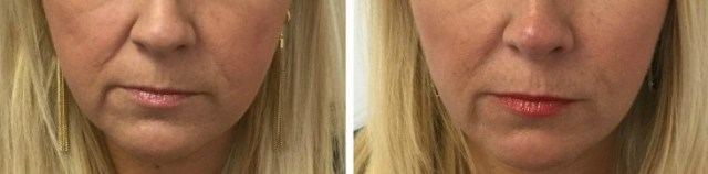 5 Things I Wish I Knew about Wrinkles (before I got Botox) | GlamKaren.com