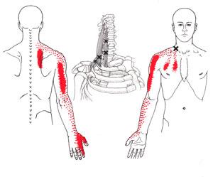 Repetitive Strain Injuries | RSI